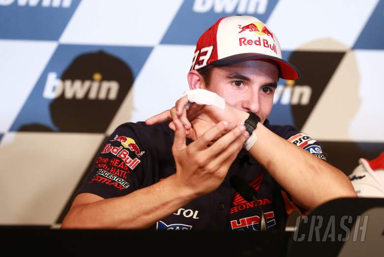 Marquez: A friend ran over my hand!